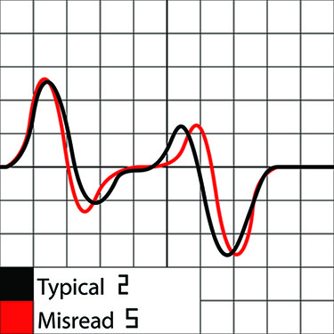 MICR characters 2 and 5 magnetic signal